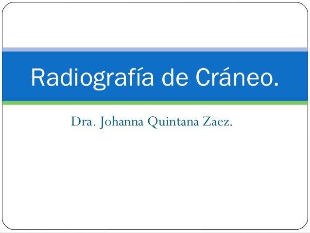 Dra. Johanna Quintana Zaez. Radiografía de Cráneo.