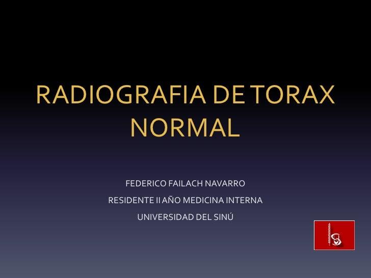 RADIOGRAFIA DE TORAX      NORMAL       FEDERICO FAILACH NAVARRO    RESIDENTE II AÑO MEDICINA INTERNA          UNIVERSIDAD ...