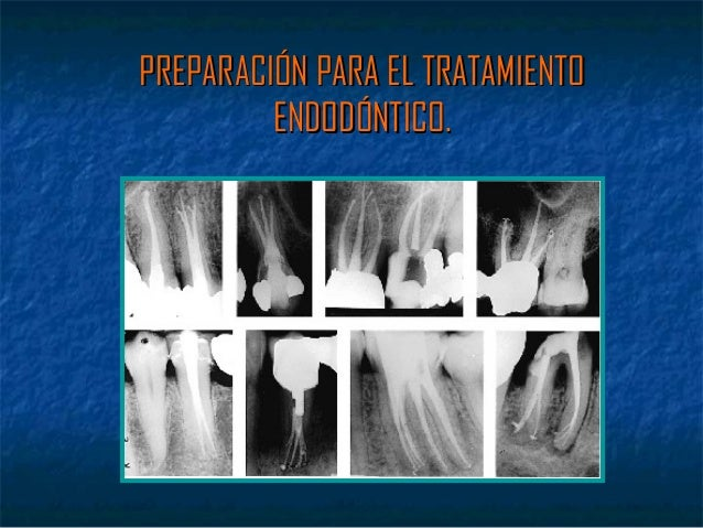 PREPARACIÓN PARA EL TRATAMIENTO         ENDODÓNTICO.
