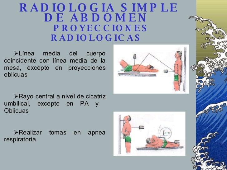 RADIOLOGIA SIMPLE DE ABDOMEN    PROYECCIONES RADIOLOGICAS   <ul><li>Línea media del cuerpo coincidente con línea media de ...