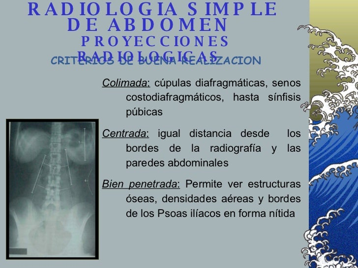 <ul><li>Colimada :  cúpulas diafragmáticas, senos costodiafragmáticos, hasta sínfisis púbicas </li></ul><ul><li>Centrada :...