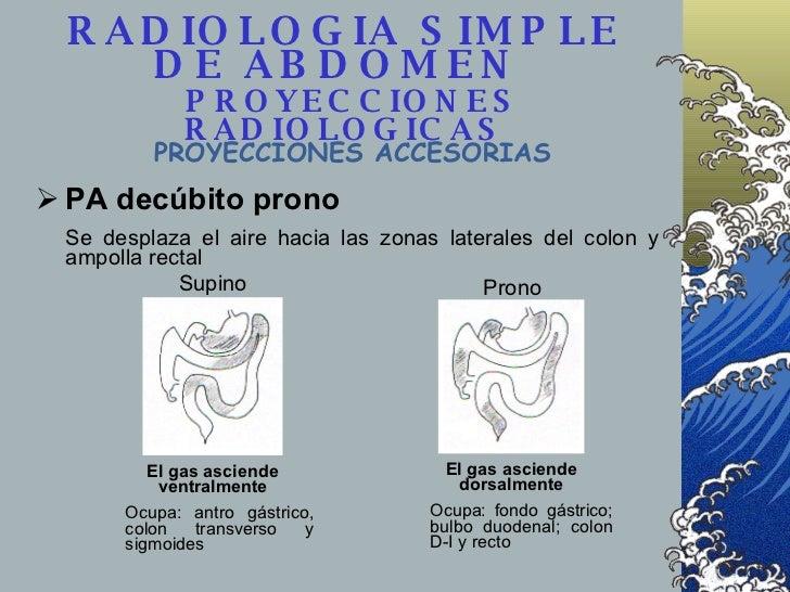 <ul><li>PA decúbito prono </li></ul><ul><li>Se desplaza el aire hacia las zonas laterales del colon y ampolla rectal </li>...