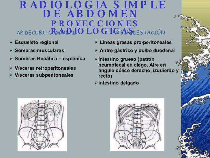 RADIOLOGIA SIMPLE DE ABDOMEN    PROYECCIONES RADIOLOGICAS <ul><li>Antro gástrico y bulbo duodenal </li></ul><ul><li>Sombra...