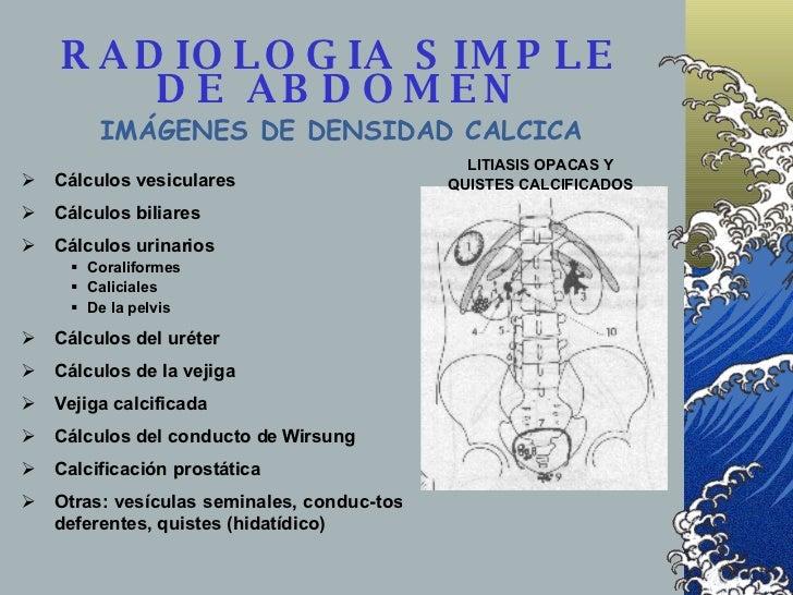 RADIOLOGIA SIMPLE DE ABDOMEN <ul><li>Cálculos vesiculares </li></ul><ul><li>Cálculos biliares </li></ul><ul><li>Cálculos u...