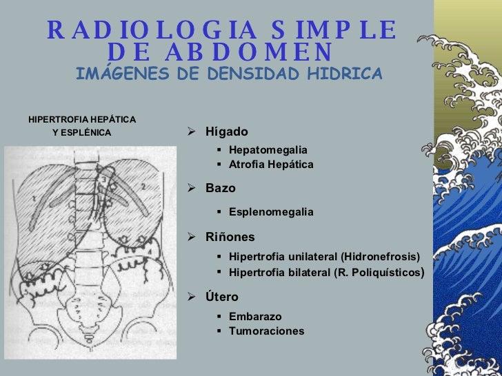 RADIOLOGIA SIMPLE DE ABDOMEN IMÁGENES DE DENSIDAD HIDRICA <ul><ul><li>Hígado </li></ul></ul><ul><ul><ul><li>Hepatomegalia ...