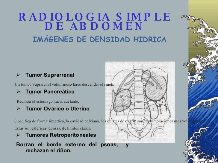 RADIOLOGIA SIMPLE DE ABDOMEN <ul><li>Tumor Suprarrenal </li></ul><ul><li>Tumor Pancreático </li></ul><ul><li>Tumor Ovárico...