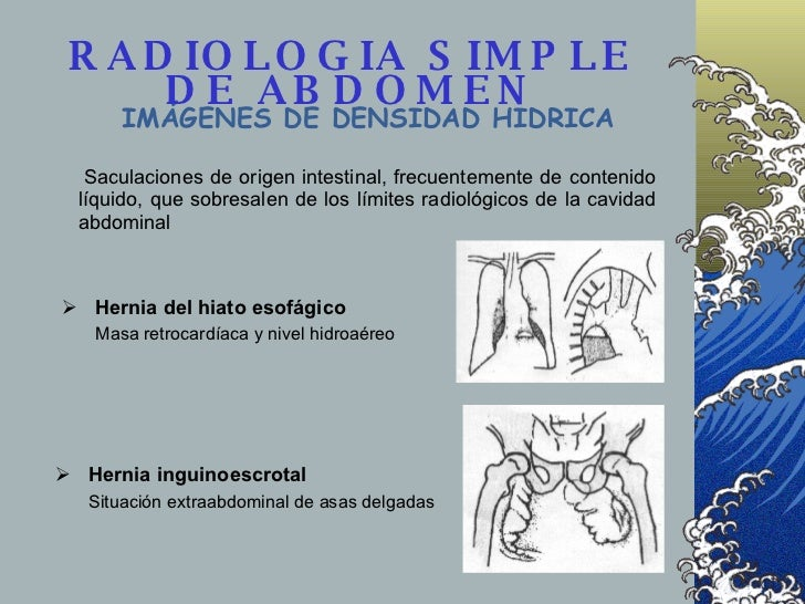 RADIOLOGIA SIMPLE DE ABDOMEN <ul><li>Hernia del hiato esofágico </li></ul><ul><li>Masa retrocardíaca y nivel hidroaéreo </...