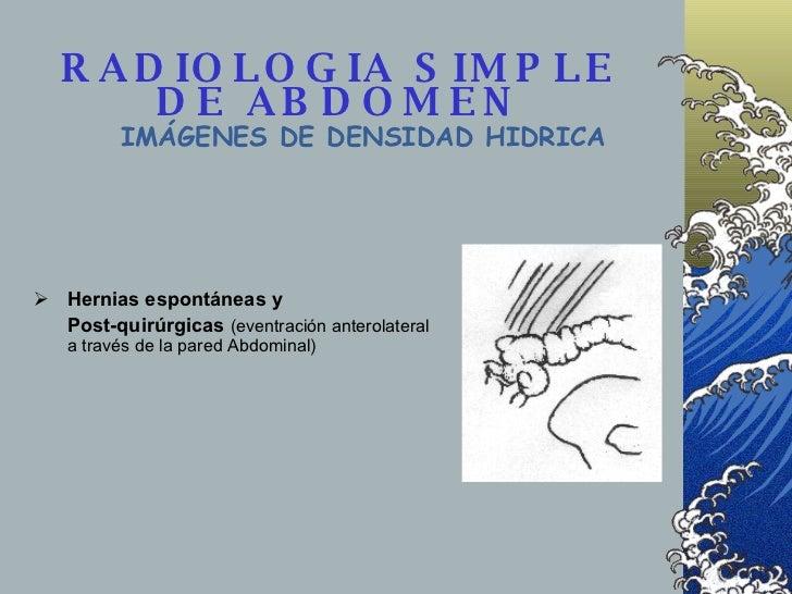 RADIOLOGIA SIMPLE DE ABDOMEN IMÁGENES DE DENSIDAD HIDRICA <ul><li>Hernias espontáneas y </li></ul><ul><li>Post-quirúrgicas...