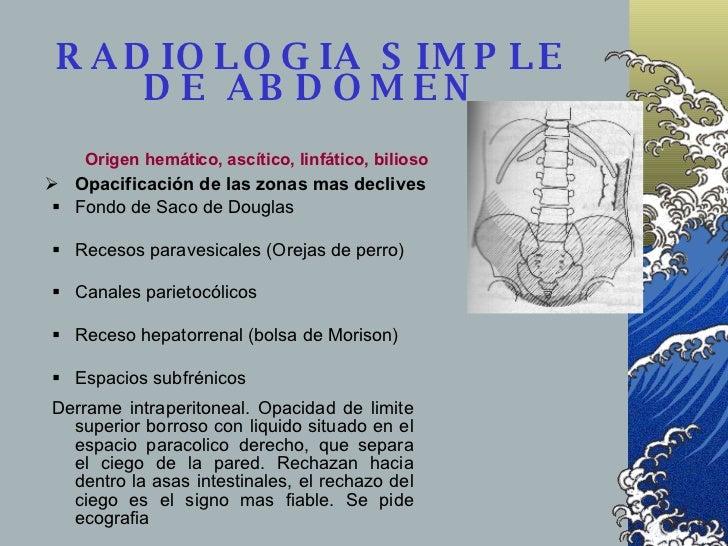 RADIOLOGIA SIMPLE DE ABDOMEN <ul><ul><ul><li>Fondo de Saco de Douglas </li></ul></ul></ul><ul><ul><ul><li>Recesos paravesi...