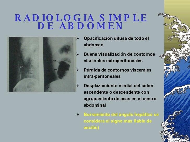 RADIOLOGIA SIMPLE DE ABDOMEN <ul><ul><li>Opacificación difusa de todo el abdomen </li></ul></ul><ul><ul><li>Buena visualiz...