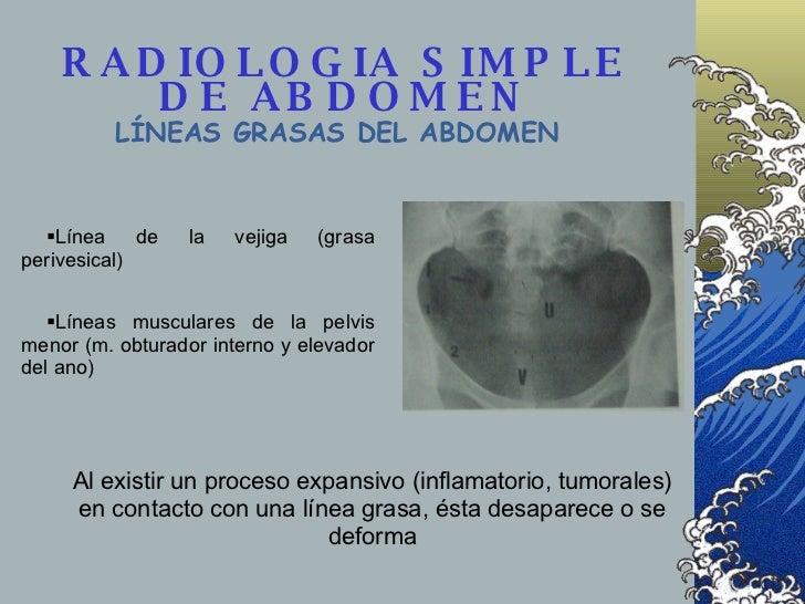 RADIOLOGIA SIMPLE DE ABDOMEN LÍNEAS GRASAS DEL ABDOMEN <ul><li>Línea de la vejiga (grasa perivesical) </li></ul><ul><li>Lí...