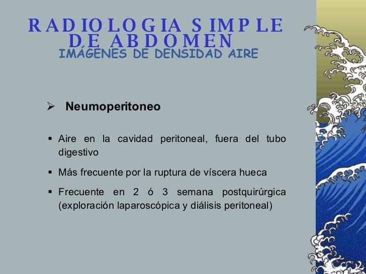 RADIOLOGIA SIMPLE DE ABDOMEN  IMÁGENES DE DENSIDAD AIRE <ul><li>Aire en la cavidad peritoneal, fuera del tubo digestivo </...