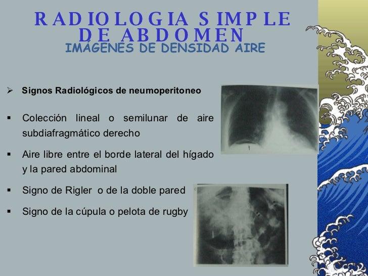 RADIOLOGIA SIMPLE DE ABDOMEN IMÁGENES DE DENSIDAD AIRE <ul><li>Colección lineal o semilunar de aire subdiafragmático derec...