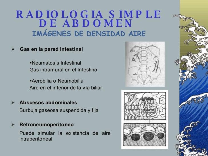 RADIOLOGIA SIMPLE DE ABDOMEN  IMÁGENES DE DENSIDAD AIRE <ul><li>Gas en la pared intestinal </li></ul><ul><li>Neumatosis In...