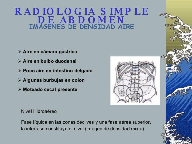RADIOLOGIA SIMPLE DE ABDOMEN IMÁGENES DE DENSIDAD AIRE <ul><li>Aire presente en el tubo digestivo </li></ul><ul><li>Aire e...