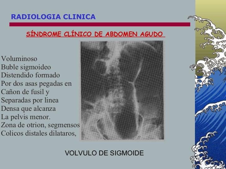 SÍNDROME CLÍNICO DE ABDOMEN AGUDO  VOLVULO DE SIGMOIDE Voluminoso Buble sigmoideo Distendido formado  Por dos asas pegadas...