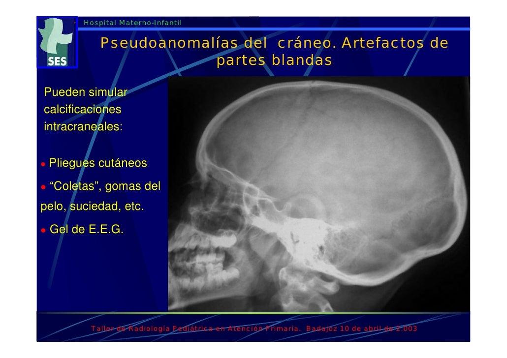 Rxtaller variantes de la normalidad en rx pediatrica