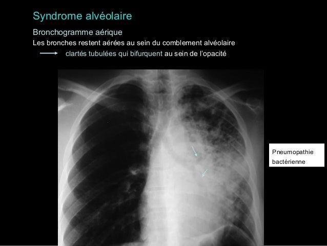 Syndrome alvéolaire Bronchogramme aérique Les bronches restent aérées au sein du comblement alvéolaire clartés tubulées qu...