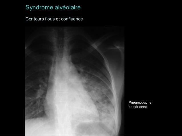 Syndrome alvéolaire Contours flous et confluence  Pneumopathie bactérienne