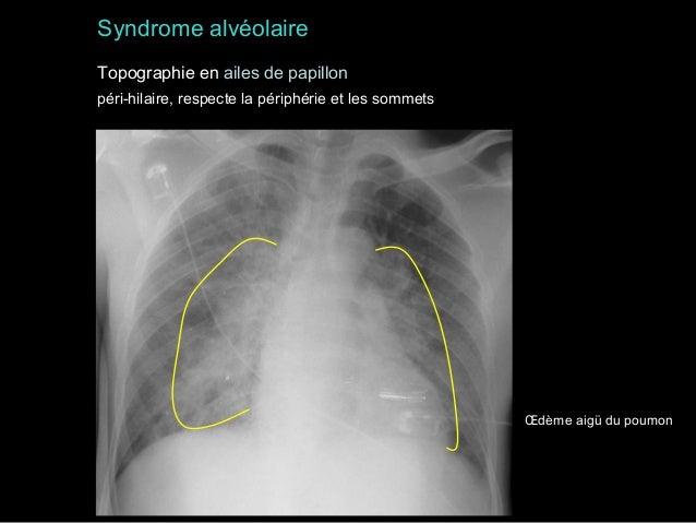 Syndrome alvéolaire Topographie en ailes de papillon péri-hilaire, respecte la périphérie et les sommets  Œdème aigü du po...