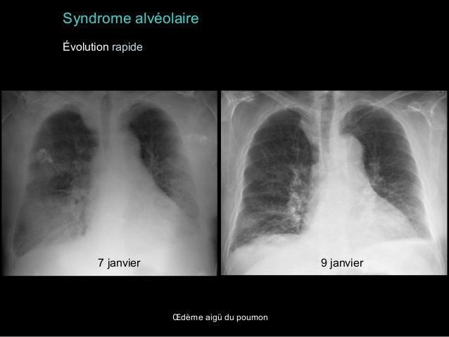 Syndrome alvéolaire Évolution rapide  7 janvier  9 janvier  Œdème aigü du poumon