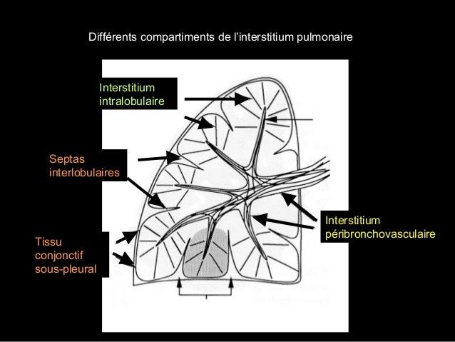 Syndrome interstitiel Atteinte du secteur central Opacités péribronchovasculaires, flou péri vasculaire juxta-hilaire inte...