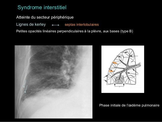 Syndrome interstitiel Atteinte du secteur intermédiaire ± périphérique Opacités réticulées, réticulonodulaires  sarcoïdose...