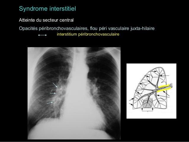 Syndrome interstitiel Opacités réticulées à type de rayon de miel stade de desctruction ultime de certaines fibroses