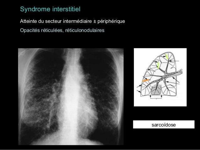 Fibrose pulmonaire avec rayon de miel