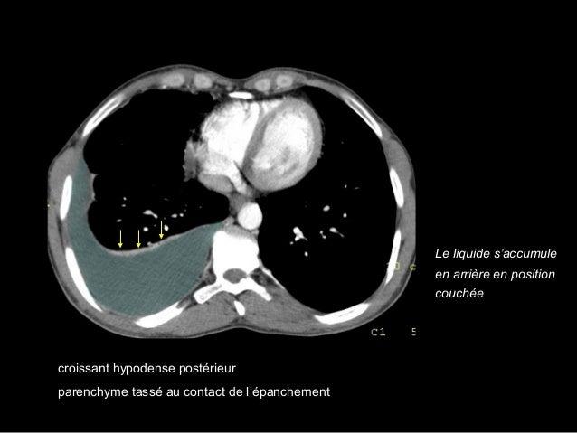 Syndrome pleural Epanchement pleural mixte, liquidien et gazeux = hydropneumothorax clarté apicale aérique avasculaire lim...