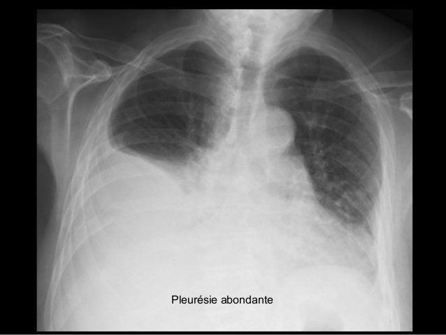 Pneumonie excavée