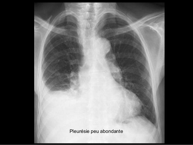 Syndrome bronchique Signes directs de l'atteinte bronchique Epaississement des parois des bronches, dilatation de leurs lu...