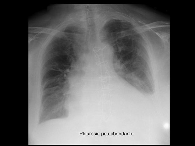 Syndrome bronchique Signes directs de l'atteinte bronchique images kystiques regroupées « en grappes » opacités tubulées e...