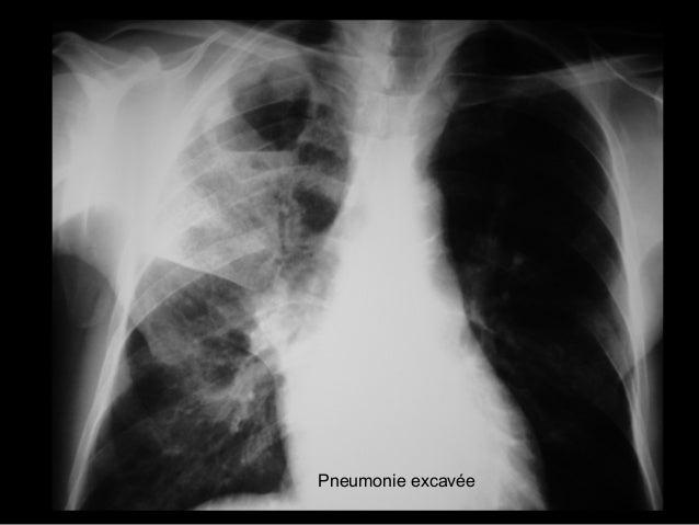 Syndrome médiastinal Présence d'une masse, d'une lésion infiltrante ou d'air dans le médiastin Elargissement médiastinal D...