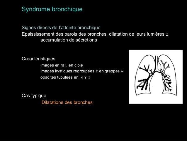 Syndrome médiastinal La gamme diagnostique dépend de la localisation – 3 compartiments  antérieur - moyen - postérieur  – ...