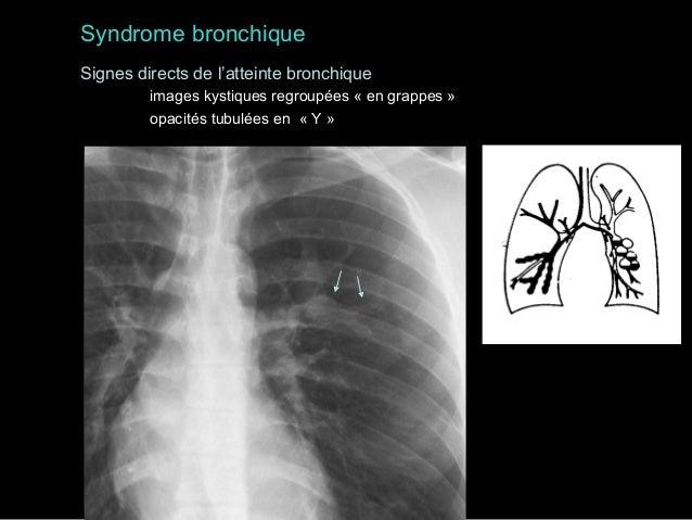 Syndrome médiastinal  • Médiastin Antérieur  /  Angle Cardiophrénique  – Thyroïde  - Franges graisseuses  – Thymus  - Hern...