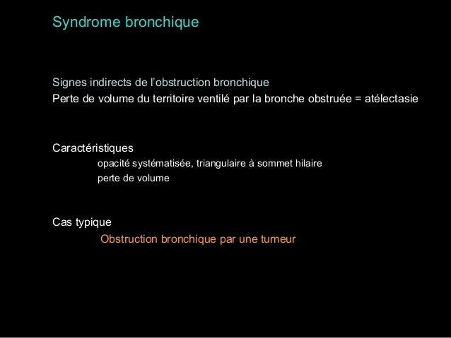 Volumineux goître thyroïdien