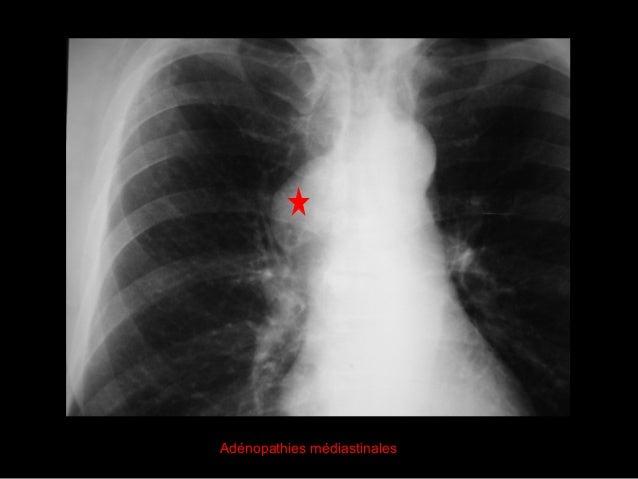 TEST N°4 Type d'opacité ? Localisation ? Opacité à contours flous, confluente  alvéolaire Bord droit du cœur visible  lo...