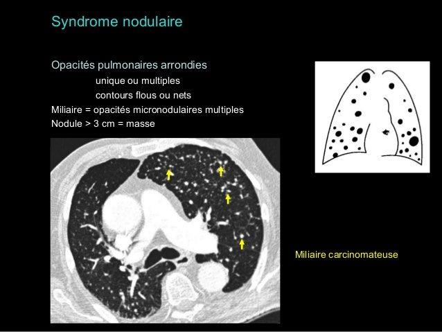 masse médiastinale antérieure pneumopathie du lobe supérieur droit