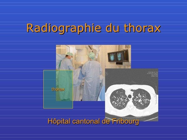Radiographie du thorax thorax Hôpital cantonal de Fribourg