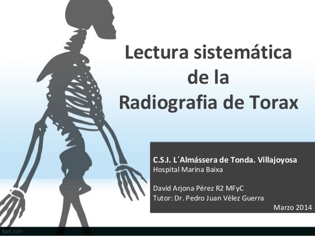 Lectura sistemática de la Radiografia de Torax C.S.I. L´Almássera de Tonda. Villajoyosa Hospital Marina Baixa David Arjona...