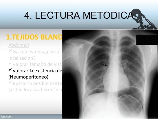 Radiograf a abdominal