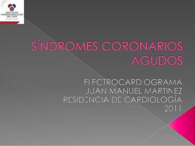 ELECTROCARDIOGRAFÍA SÍNDROMES CORONARIOS AGUDOS Durante el segmento ST, todas las fibras ventriculares tienen el mismo pot...