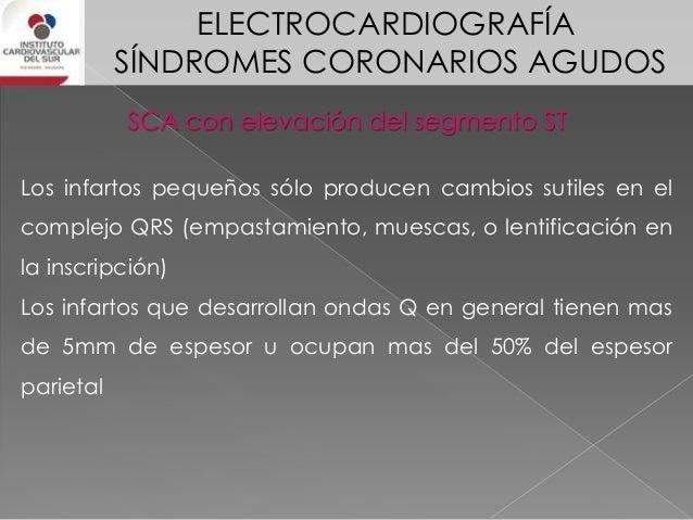 ELECTROCARDIOGRAFÍA SÍNDROMES CORONARIOS AGUDOS SCA con elevación del segmento ST El hallazgo clave e indicador de la zona...