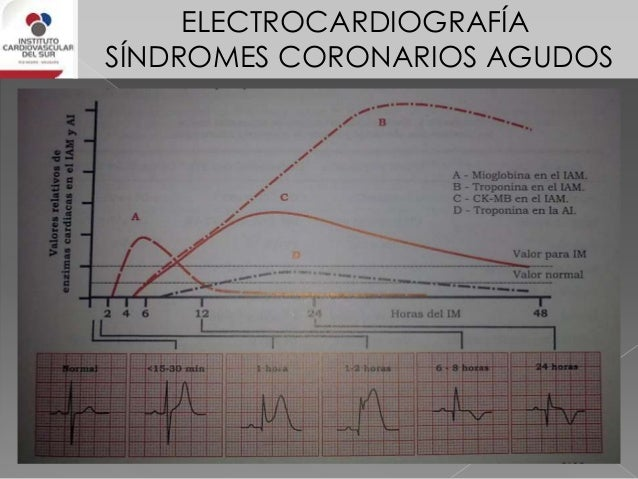 ELECTROCARDIOGRAFÍA SÍNDROMES CORONARIOS AGUDOS IAM inferior EN TODOS LOS PACIENTES CON IAM DE CARA INFERIOR SE DEBE HACER...