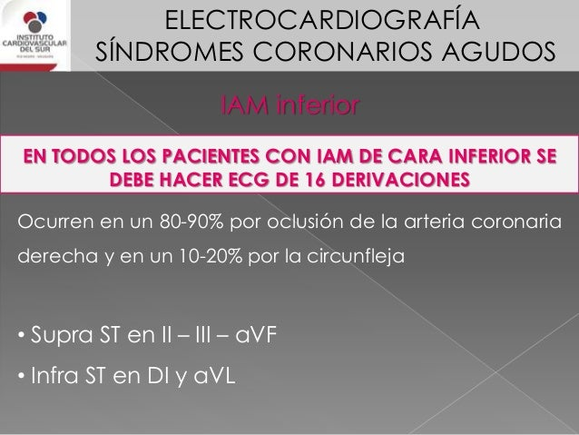ELECTROCARDIOGRAFÍA SÍNDROMES CORONARIOS AGUDOS Identificación de arteria culpable del IAM inferior SIGNO ELECTROCARDIOGRA...