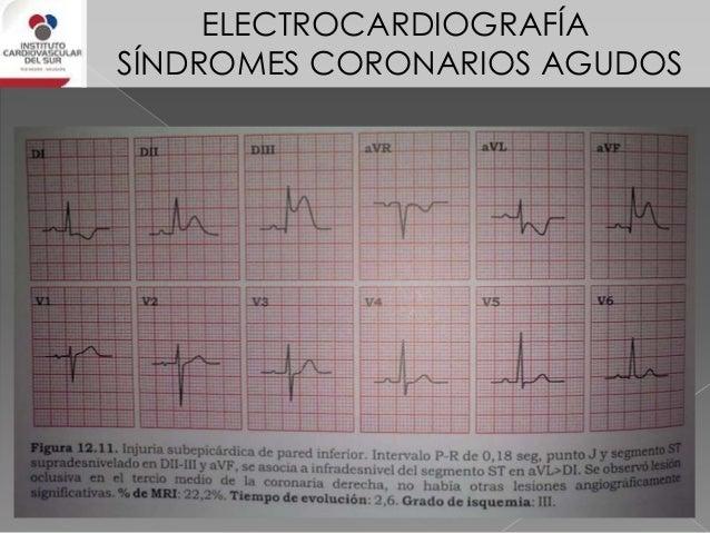 ELECTROCARDIOGRAFÍA SÍNDROMES CORONARIOS AGUDOS