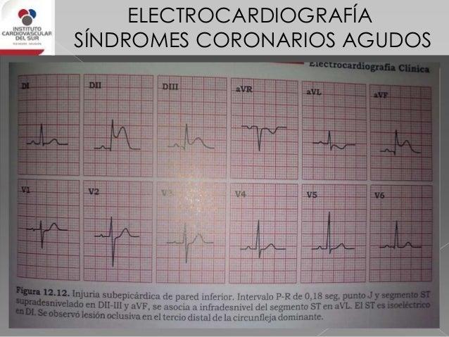 ELECTROCARDIOGRAFÍA SÍNDROMES CORONARIOS AGUDOS IAM de cara posterior 3% de los infartos inferiores. Se debe a oclusión de...