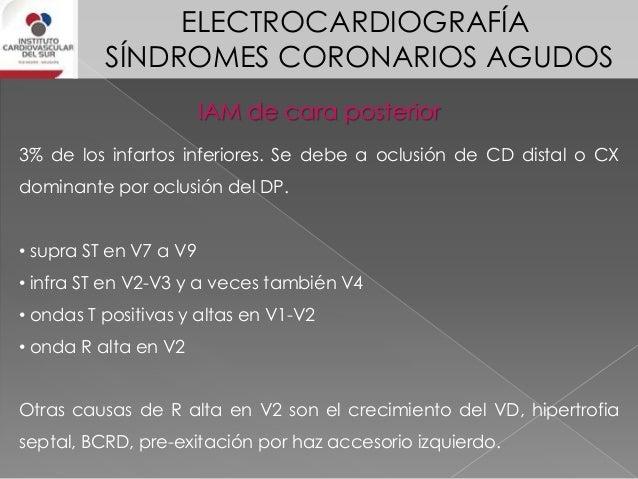 ELECTROCARDIOGRAFÍA SÍNDROMES CORONARIOS AGUDOS IAM de cara inferoposterior Puede ser causado por la oclusión de CD o CX. ...