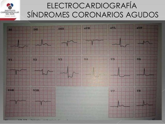 ELECTROCARDIOGRAFÍA SÍNDROMES CORONARIOS AGUDOS IAM de VD • supra ST en V3R – V4R que puede extenderse hasta V6R • supra S...